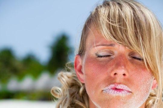 KAITSE END: neli asja, mis soodustavad päikesepõletuse saamist