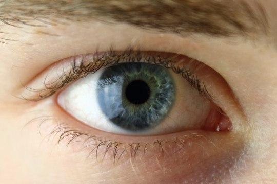 14-aastane Vlas vajab toetust hädavajalikuks silmanärvioperatsiooniks
