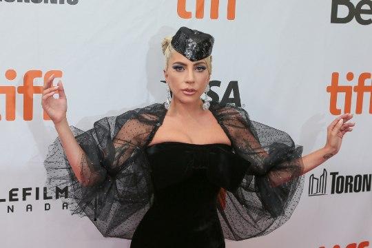 Lady Gaga võitleb iga päev krooniliste valudega