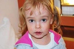 Lastefond kogub annetusi haruldase nahahaigusega väikese Laura toetuseks