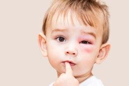Malluka beebiblogi: kes on süüdi, kui lapsega juhtub õnnetus avalikus kohas?