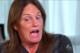 Bruce Jenner peab oma hambad välja vahetama