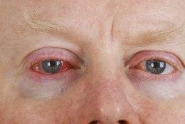 Punane silm - levinud silmapõletik, mis levib väga edukalt koolides