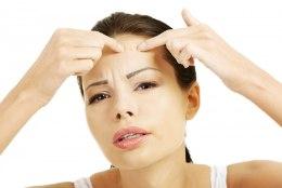 Aknega hädas olijad võivad mai keskpaigani jääda vajaliku ravimita