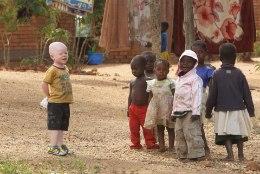 Aafrikas peavad nõiad verist jahti valgetele mustadele