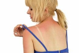 Kas sina tead, et päikesest põlenud nahale ei tohi hapukoort määrida?