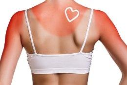 ARSTID SOOVITAVAD: kodune esmaabi päikesepõletuse korral