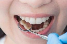 Hammaste tervise kuu: kas sina pesed oma hambaid õigesti?