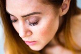 ILU | Eksperdid annavad nõu, kuidas suviste nahaprobleemide korral käituda