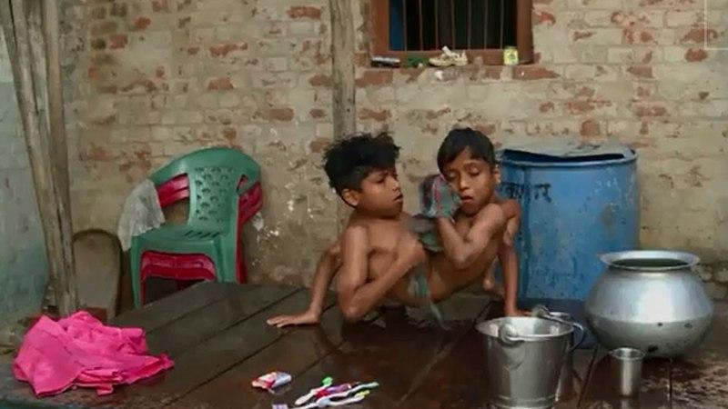 VIDEO: 12aastased Siiami kaksikud ei soovi, et neid lahutataks