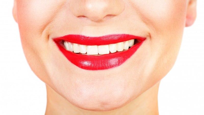 Mida teeksid veatu naeratuse nimel?