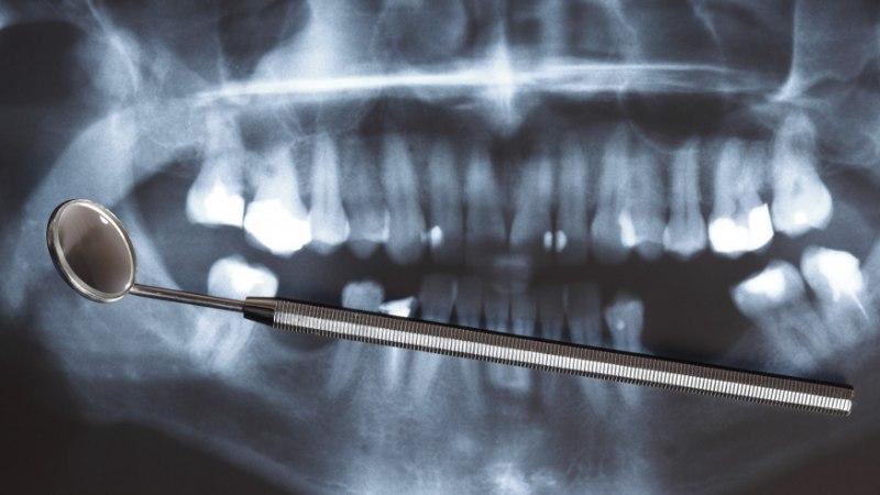 Katkised hambad – mitte ainult iluviga