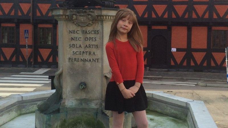 Ravimatu karvakasvuhäirega tüdruk vajab lahkete inimeste abi