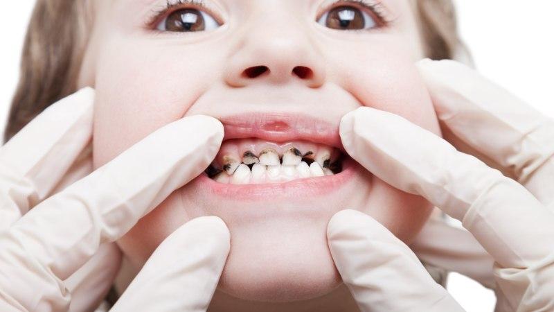 ISA PANDI VANGI: mees toitis lapsi vaid Coca-Colaga, 4-aastasel tõmmati välja seitse hammast