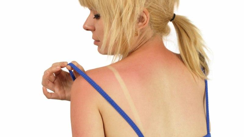 Hapukoor süvendab päikesepõletust