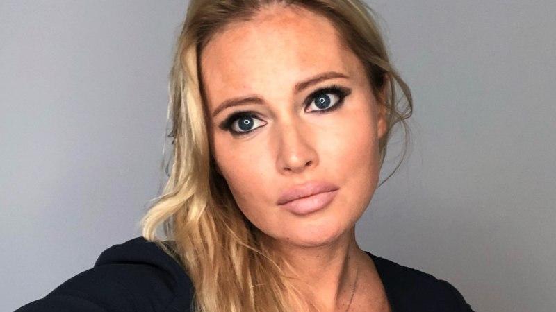 42-летняя Дана Борисова показала лицо после пластики