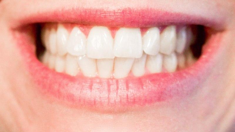 Looduslikult hambad säravvalgeks