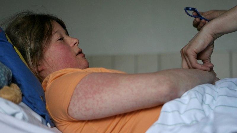 LEETRITESSE NAKATUMINE KOLMEKORDISTUS EUROOPAS: eriti rajult levib viirus Ukrainas