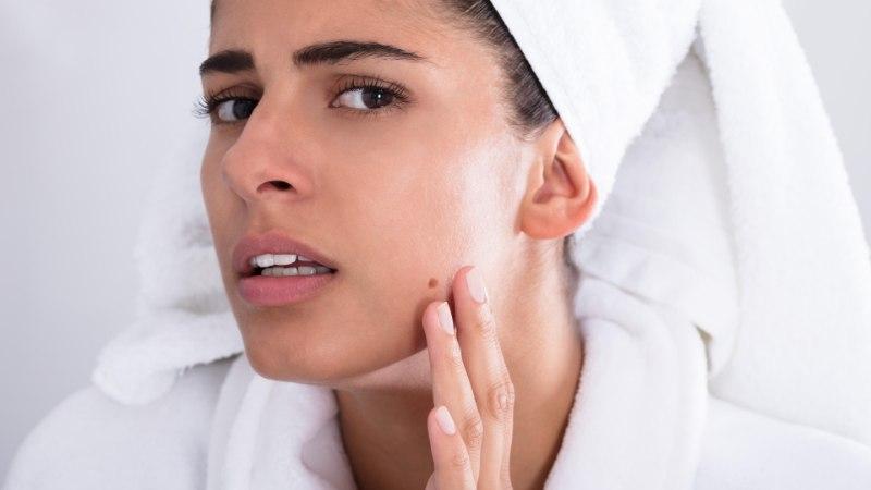Принимали лекарство, а в итоге пострадала кожа? Эксперт советует, что делать