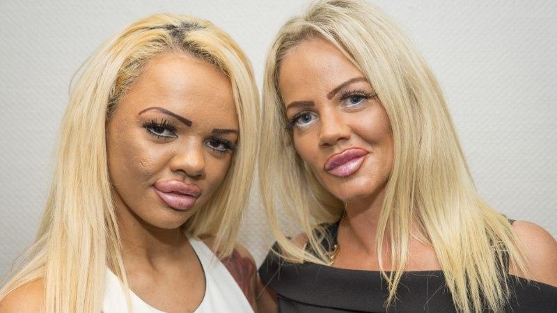 Ema parseldas teismelist tütart, et nad mõlemad saaksid ilulõikusele minna