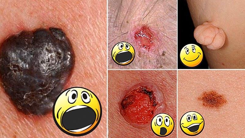 Jälgi oma nahka! Varakult avastatud nahavähk on ravitav!