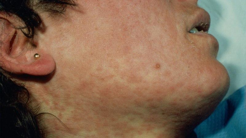 RASKED KATSUMUSED: nii põevad leetreid, mumpsi ja teisi lastehaigusi täiskasvanud