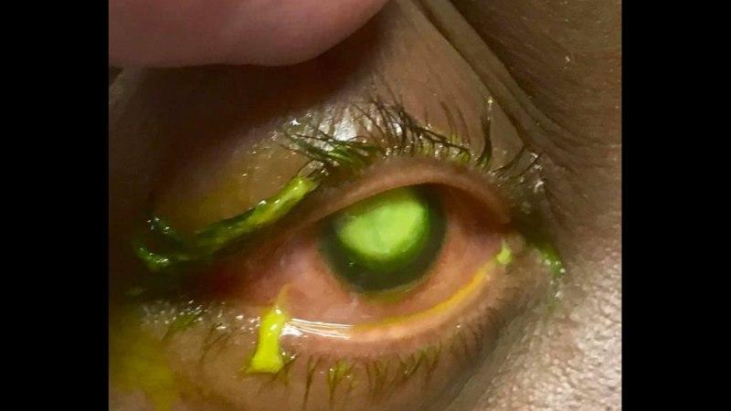 ÕÕVASTAV: fotod näitavad, miks ei tohiks kunagi kontaktläätsed silmas magada